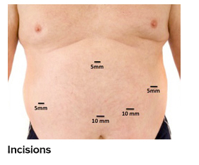 Gastric Sleeve Results And Benefits