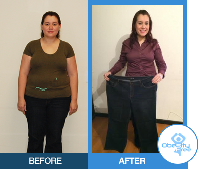 Gastric Sleeve Surgery – Obesity Free